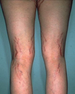 Striae resulting from the application of clobetasol propionate cream daily for two years.